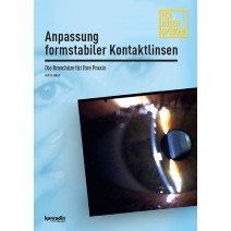 Anpassung formstabiler Kontaktlinsen